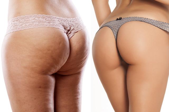 Cellulite bei männern am po